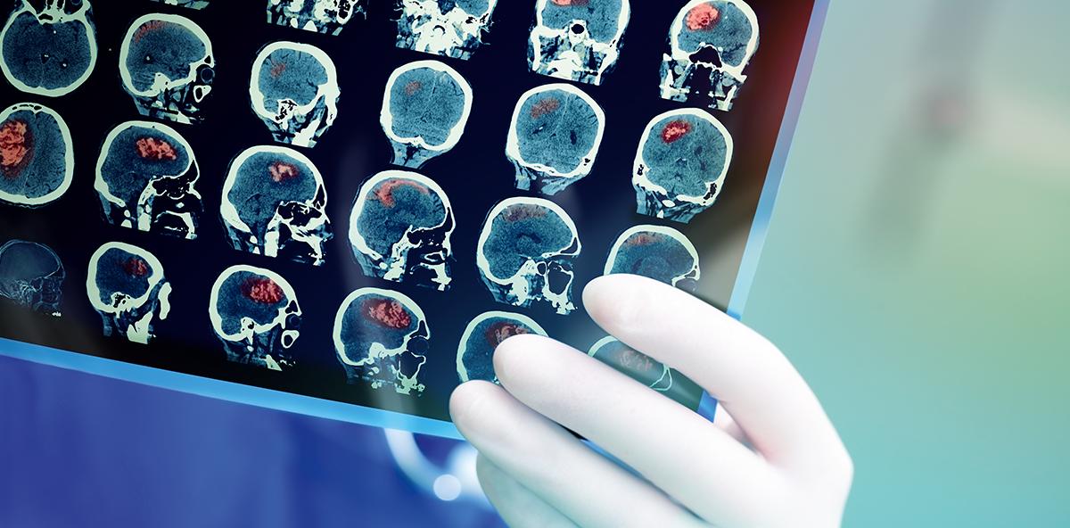 Der Nutzen der Gehirnforschung in der Prophylaxesitzung