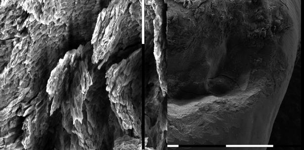 REM-Vergleich morphologischer Veränderungen im Zahnhartgewebe