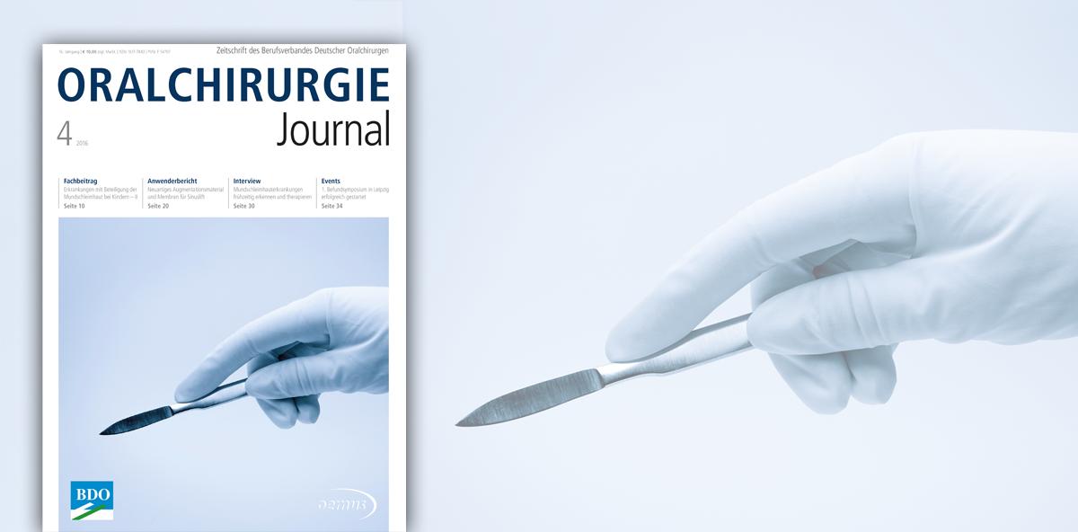 Neues Oralchirurgie Journal widmet sich Mundschleimhauterkrankungen