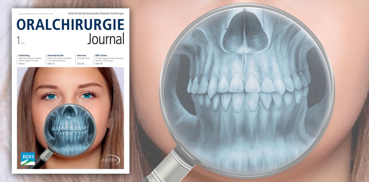 Oralchirurgie Journal: Erste Ausgabe des Jahres jetzt online lesen