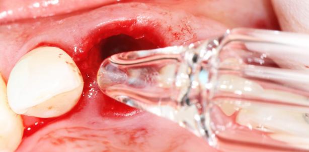 Protokoll einer Keramikimplantation nach Dr. Dominik Nischwitz