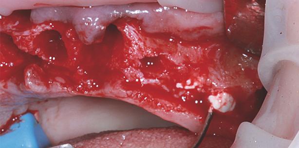 Anwendungsbeobachtung einer b-TCP-basierten Knochenersatzmaterialpaste