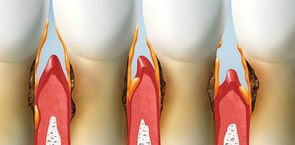 Jeder vierte Patient in Österreich leidet an Parodontitis