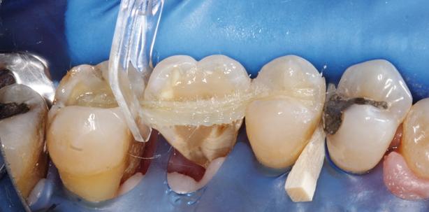 Zahnschienung nach Parodontaltherapie