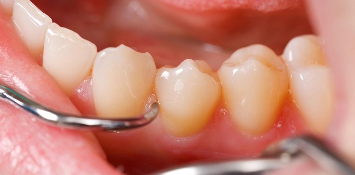 Die parodontale Therapie ist überholt und braucht ein Update – Teil 4