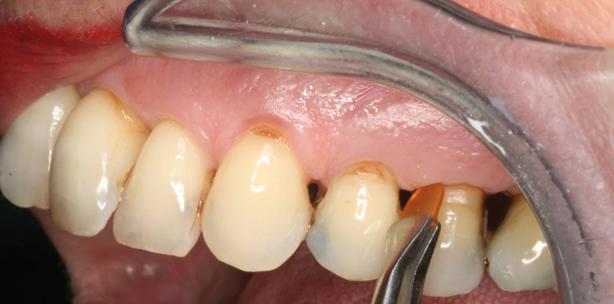 Parodontitis bei Patienten 50+