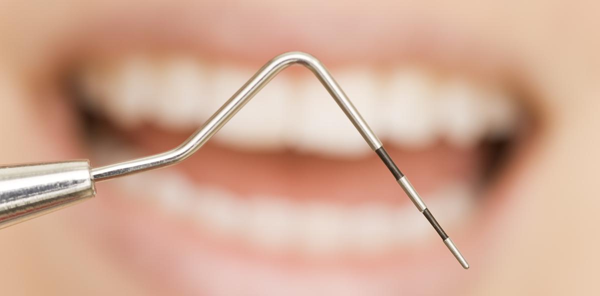 Neue Studie: Auch ohne Fluorid gegen Parodontitis