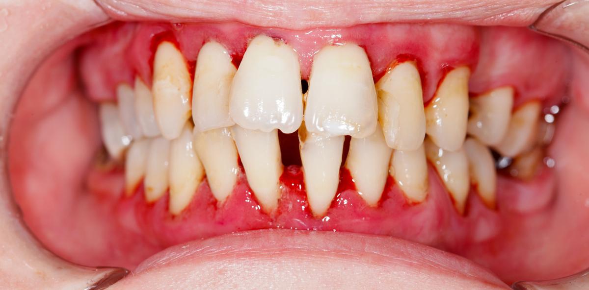 """""""Langzeitergebnisse bei aggressiver Parodontitis"""""""