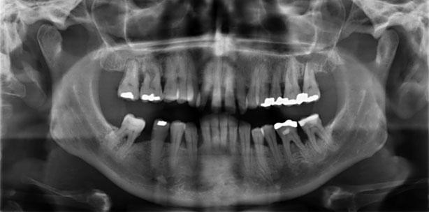 """""""Bearbeitung"""" von Wurzeloberflächen bei Parodontitis: Wie viel ist nötig?"""