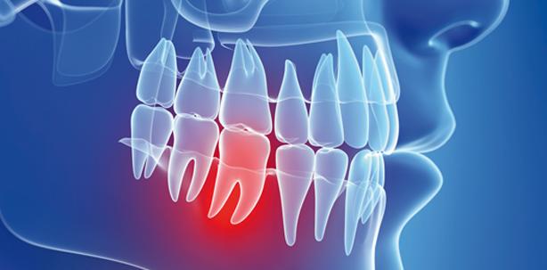 Begleittherapien zu Parodontopathien