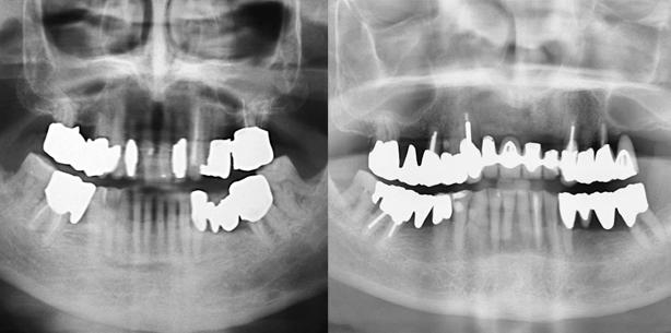 Parodontalprothetische Behandlungsstrategie – Lebenslanger Erhalt von Zähnen?