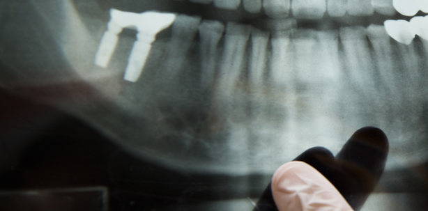 Entstehung und Progression periimplantärer Erkrankungen und Implantatverlust