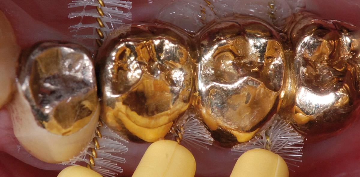 Prävention parodontaler und periimplantärer Erkrankungen – Stand 2016