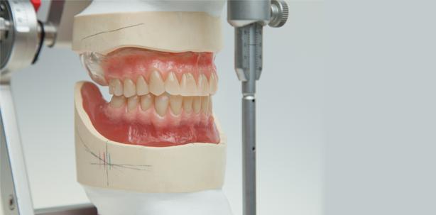 Schleimhautgetragene OK- und UK-Totalprothese
