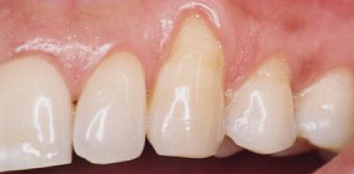 Erhaltungstherapie: Niedrigabrasives Pulver auf Erythritolbasis