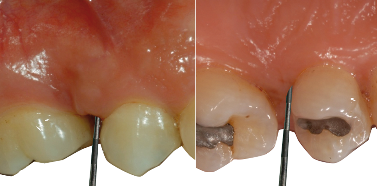 Refraktäre Parodontitis – Problematische Diagnose und Therapie