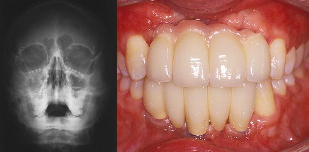 Implantatprothetische Rehabilitation nach Frontzahnverlust