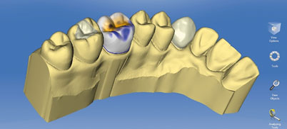 Software für CAD/CAM-System CEREC
