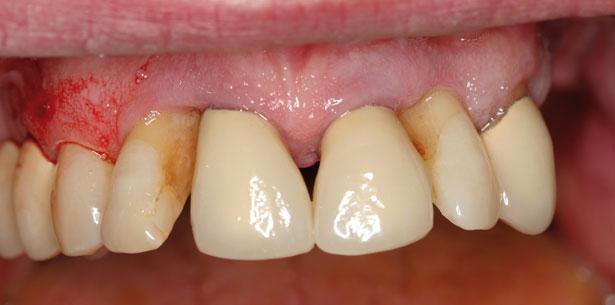 Ästhetik im kompromittierten parodontal geschädigten Gebiss – Sofortimplantation