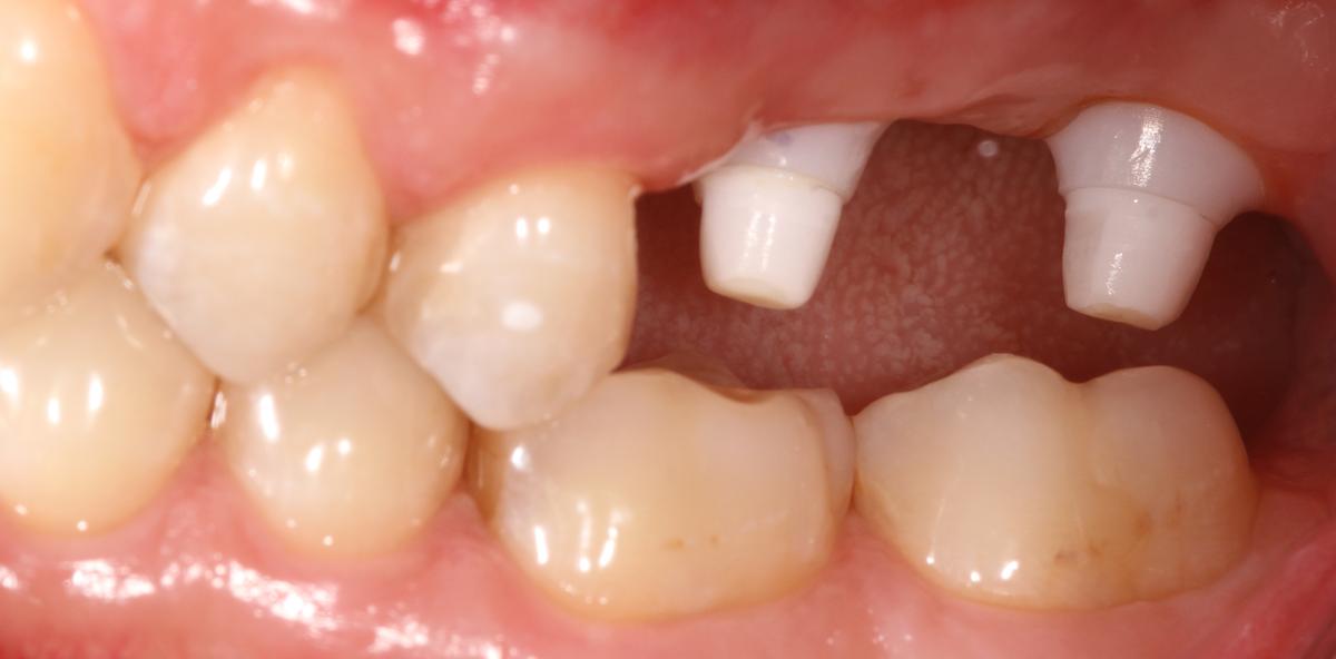 Sofortimplantation mit Keramikimplantaten im Seitenzahngebiet