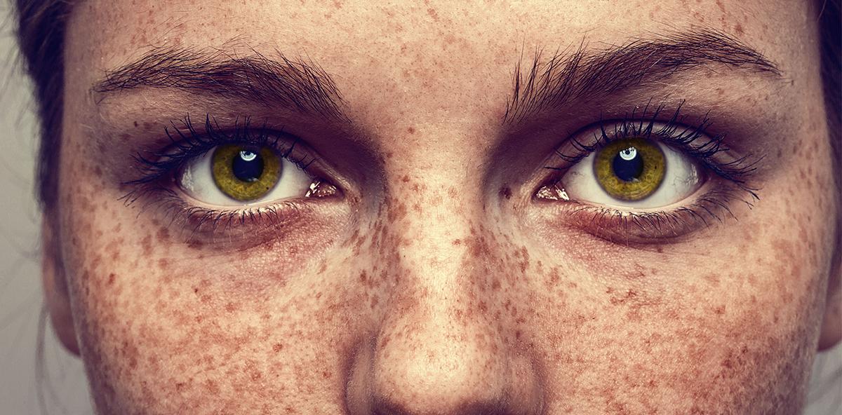 Sommersprossen à la Emma Stone machen Frauen einzigartig