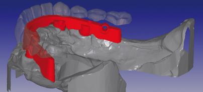 CAD/CAM-gefertigte implantatgetragene Stege