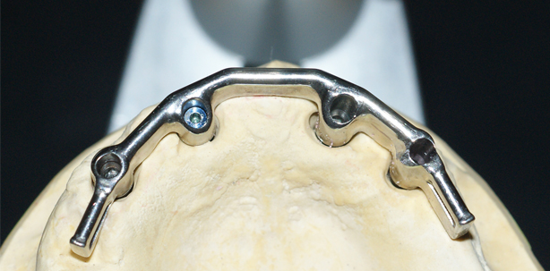 Implantatgestützte Versorgung mit Langzeitperspektive