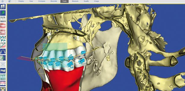 SureSmile® 7.0 – Digitale kieferorthopädische Behandlung im Jahr 2014