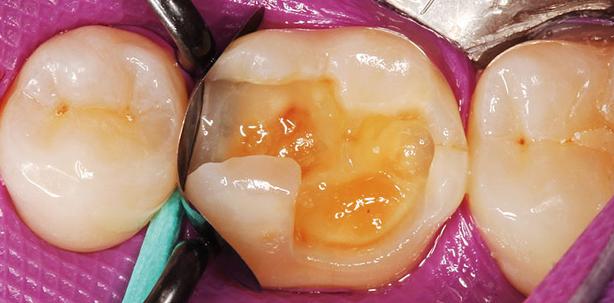 S-förmiger Kanalverlauf – Herausforderung in der Endodontie