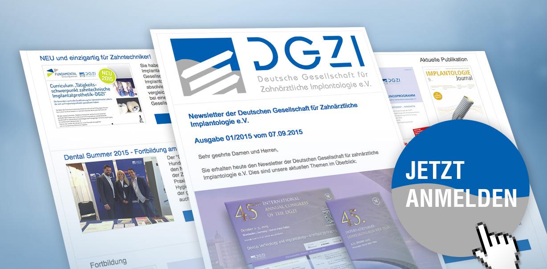 Neuer Newsletter der DGZI: Implantologie auf den Punkt gebracht