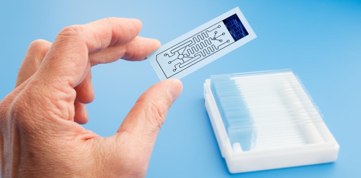 Biochip bestimmt Mundkrebsrisiko