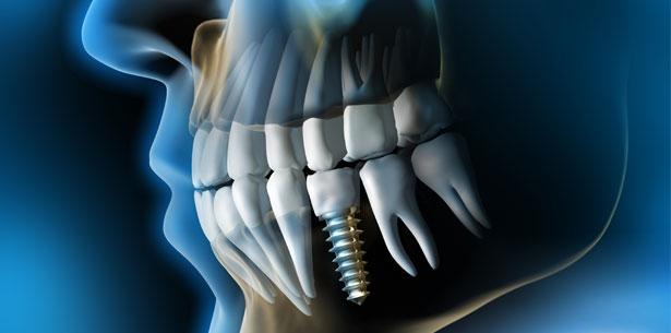 Die Titanverträglichkeit in der Implantologie