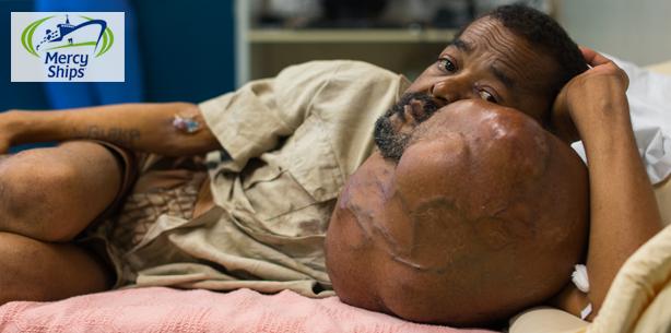 7,5 kg schwerer Tumor bei 60-jährigem Mann auf Madagaskar entfernt