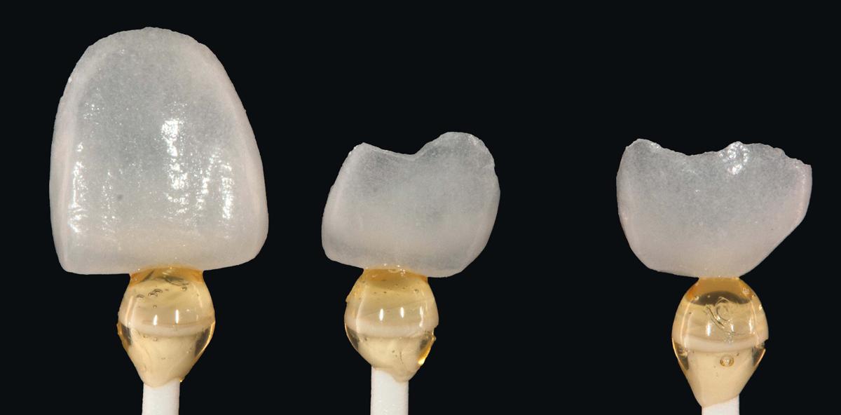 Rekonstruktion nicht kariesbedingter Zahnhartsubstanzdefekte