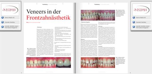 """Minimalinvasiv ist Trumpf: Neues eBook """"Veneers"""""""