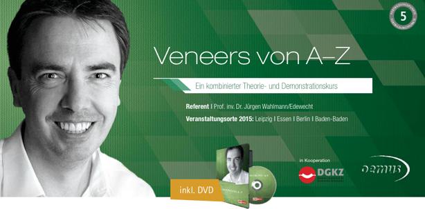 """""""Veneers von A–Z"""""""