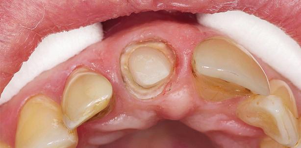 VITA ENAMIC – Ein Material für endodontische Versorgungen?