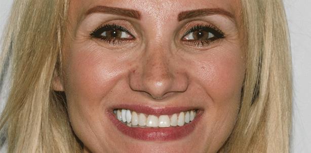 Versorgung einer Oberkieferfront mit Veneers und Vollkeramikkronen