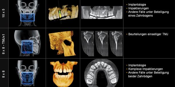 Vorteile und Nutzen von 3-D-Röntgen in Diagnostik, Planung und Therapie