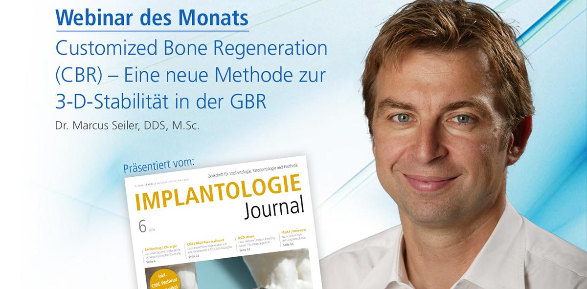 Live-Webinar zu Customized Bone Regeneration (CBR)