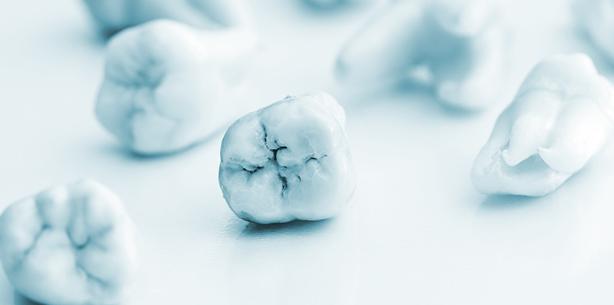 Extraktion dritter Molaren – Welche Probleme treten danach auf?