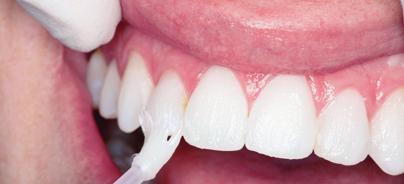Der Einsatz für gesunde und strahlende Zähne lohnt sich