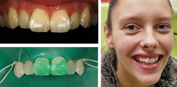 Fluoroseinfiltration: Kasuistik bei einer jungen Patientin
