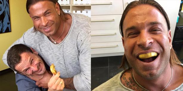 Goldener Zahnschutz für Ex-Keeper und Schwergewicht Tim Wiese