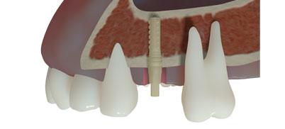 Win!® Peek-Implantat