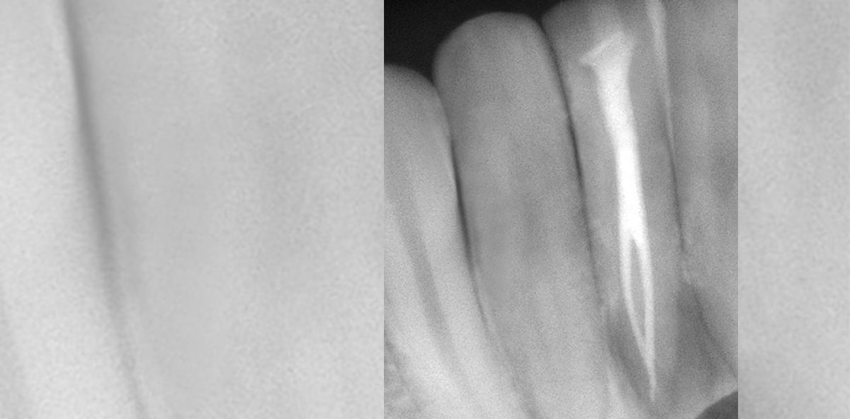 Wie viele Wurzelkanäle hat ein Zahn?