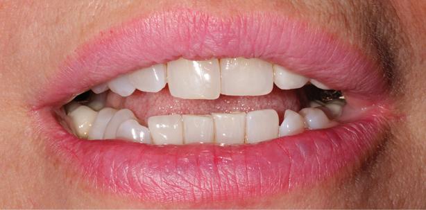 Non-Prep Veneers bei Zahnbreitendifferenz im Frontzahnbereich