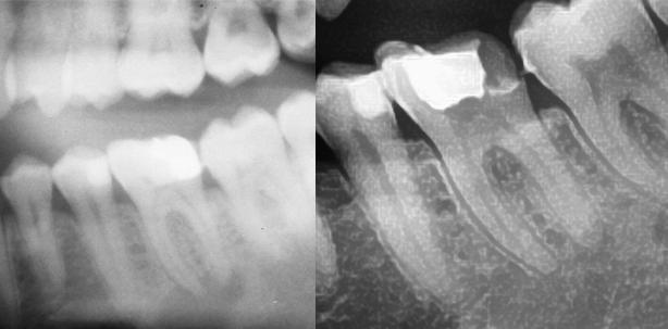 Zahnerhalt bei primär endodontischer Läsion mit ausgeprägter apikaler Parodontit