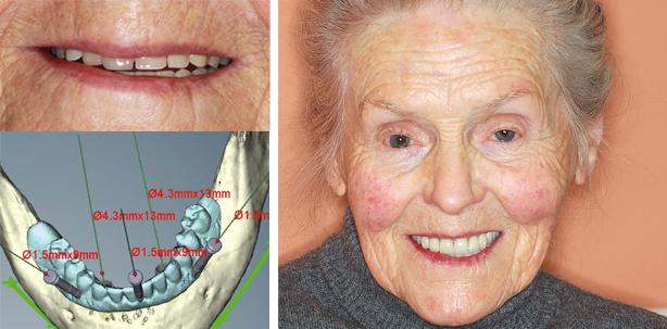 Implantatgetragener Zahnersatz und Ästhetik auch mit 95 Jahren