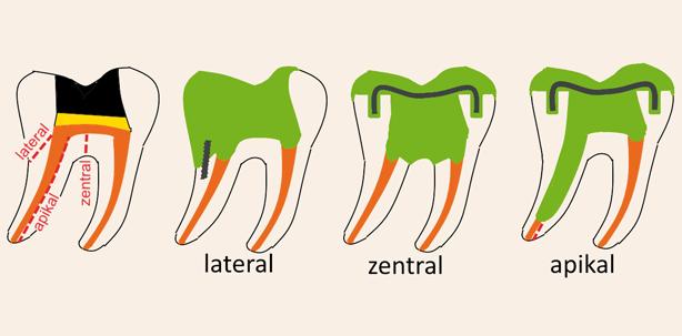 Gespaltener Zahn Reparieren